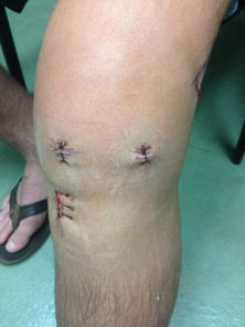 all-inside knee pic