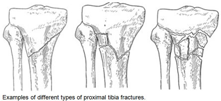 Types of proximal tibia fractures