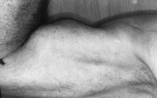 "A biceps tendon tear is made more obvious by contracting the muscle (""Popeye Muscle"")"